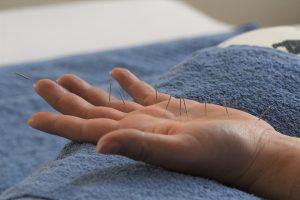Hand mit Akupunkturnadeln